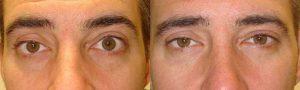 Upper Eyelid Retraction Surgeon