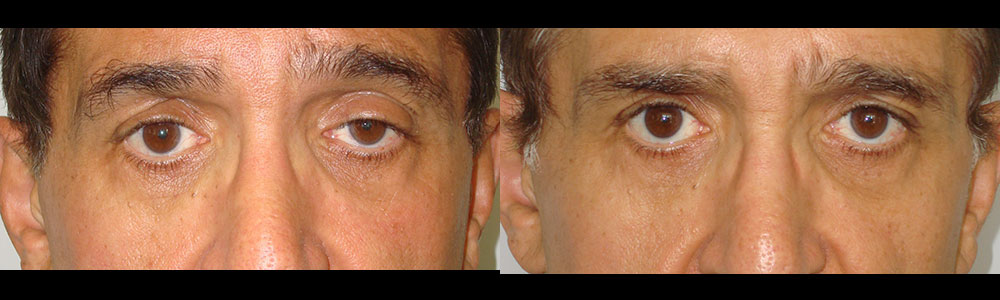 Before After of Upper Eyelid Revision