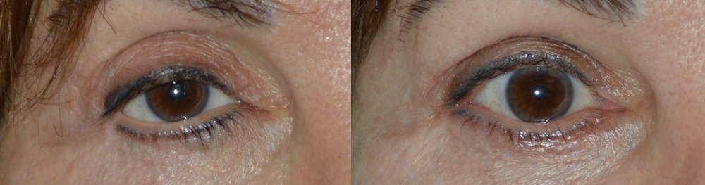 Middle age woman, with multiple prior eyelid operations and blepharoplasty, resulting in right lateral canthal angle distortion (outer corner of eye), unnatural lower eyelid contour, and droopy upper eyelid (ptosis), giving sad eye appearance. She underwent revision cosmetic eyelid plastic surgery including right upper eyelid ptosis surgery (to raise the upper eyelid), right canthoplasty, right lower eyelid retraction surgery (to lift the lower eyelid using internal approach with midface lift, without graft), and fat grafting to the upper eyelid. Note more natural, happy, youthful eye appearance in the 2 months postoperative photo.