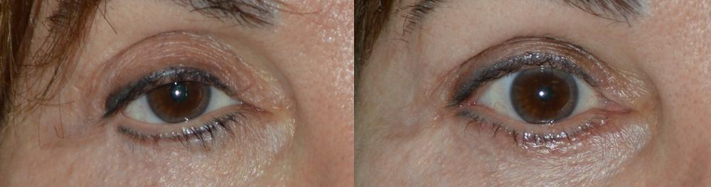 volume-restoration-eyelid-los-angeles