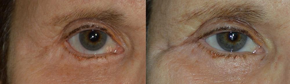 Lower Eyelid Retraction Repair in Los Angeles