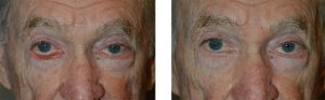 Before and After Ectropion Eyelid Surgery