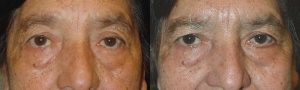 Before (left) and 3-months after (right) left lower eyelid entropion surgery.