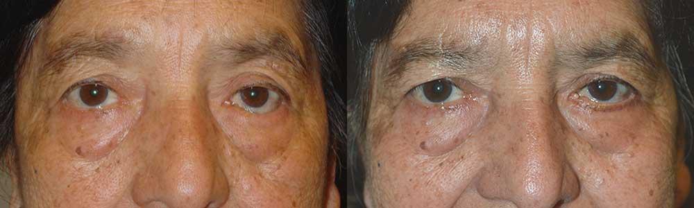 Treatment for Inward Eyelid