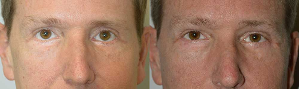 Middle age man, was unhappy about with lower eyelid retraction resulting from previous lower transcutaneous blepharoplasty (post-blepharoplasty eyelid retraction), with sclera show (white showing under eyes). He underwent reconstructive lower eyelid retraction repair (with internal Alloderm graft, midface lift, and canthoplasty) to raise the lower eyelids to more proper level. Note improved eyelid position and more attractive almond shape eye in the 3 months postoperative photo.