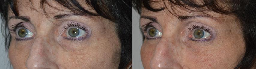 belotero-lower-eyelid-los-angeles