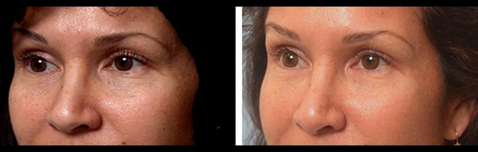 bilateral-restylane-eyelid-treatment