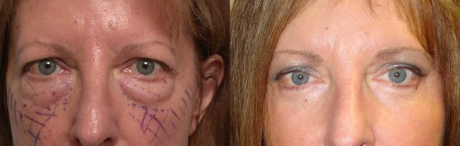 Forehead Lift Oculoplastic Surgeon