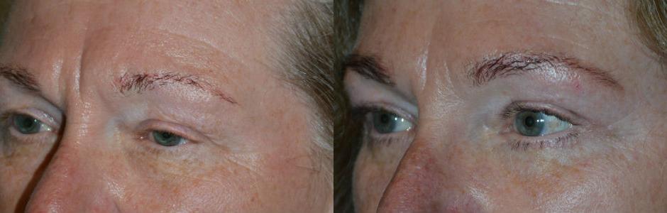 Oculoplastic Ptosis Surgery