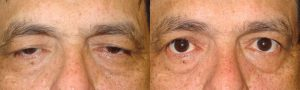 Ptosis Treatment Surgeon in LA