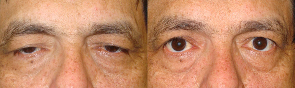 Middle age man, with significant upper eyelid ptosis (droopy upper eyelids through external approach), interfering with his vision, underwent reconstructive bilateral droopy upper eyelid repair and blepharoplasty under local anesthesia. Before and 2 months postoperative photos are shown.