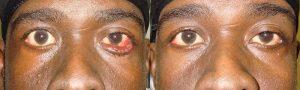 Eyelid Ectropion Repair in Los Angeles