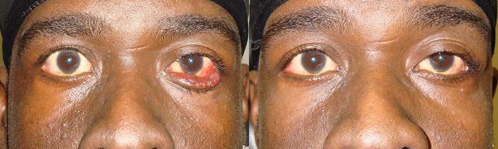 Young male, with severe left lower lid ectropion (eyelid rolls out; droopy lower eyelid), underwent reconstructive eyelid surgery, namely left lower eyelid ectropion surgery, under local anesthesia, with scar-less technique. Preop and 3 months postoperative photos are shown.