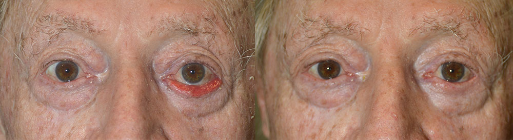 Los Angeles Eyelid Ectropion Treatment