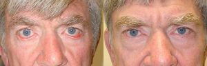 Middle age man, with severe bilateral lower eyelid cicatricial ectropion (eyelid rolls away from the eyeball, secondary to tight skin from chronic sun damage) with eye redness, underwent reconstructive eyelid surgery, namely lower eyelid ectropion surgery with skin graft where skin was taken from the upper eyelid and brought to the lower eyelid. Before and 4 months postoperative photos are shown.