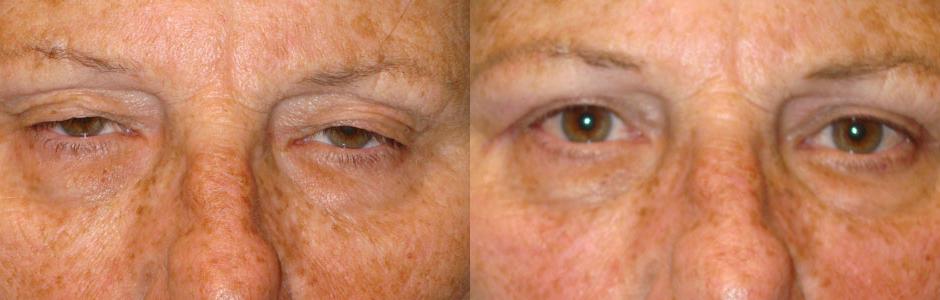 Los Angeles Droopy Eyelid Repair Surgery