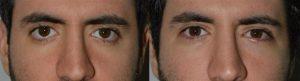 Eyelid Retraction Surgery Expert