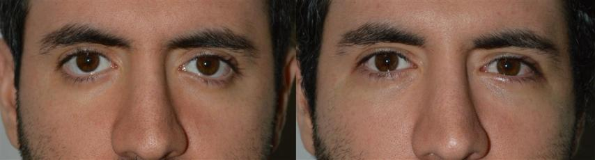Young male with inherited rounded eyes and bottom eyelid retraction with scleral show (white showing under eyes) and overall sad looking eyes, underwent lower eyelid retraction surgery (lower eyelid elevation through internal transconjunctival approach with Alloderm graft), canthoplasty, and tear trough (orbital rim) implants, resulting in raising of the lower eyelids in more natural youthful position, and more almond shape eyes. Before and 3 moths postoperative photos are shown.
