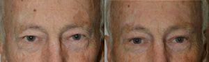 Eyelid Surgery and Browlifting