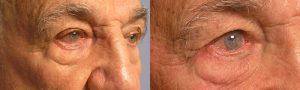 Oculoplastic Entropion Surgeon in LA