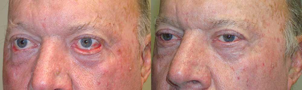 Treatment for Outward Eyelid
