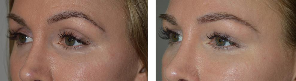 upper-eyelid-filler-injection-la