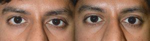 Upper Eyelid Retraction Repair in Los Angeles