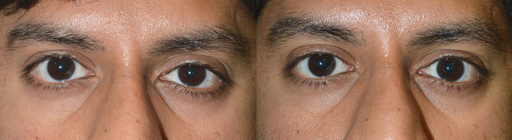 Young man, complains of eye size asymmetry, which is due to slight right upper eyelid retraction (eyelid is too high). He underwent right upper eyelid retraction correction, under local anesthesia in the office. Note improved eye symmetry in the 3 months postoperative photo on the right.