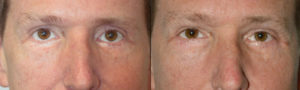 Middle age man, with lower eyelid retraction after previous aggressive lower blepharoplasty, with rounded eyes and sclera show, underwent reconstructive revision eyelid plastic surgery: lower eyelid retraction surgery (with internal graft and midface lift) and canthoplasty, to create more natural almond eye shape. Preop and 4 months postoperative photos are shown.