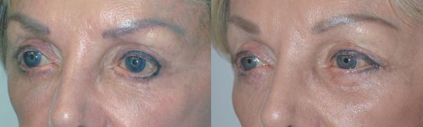 almond-shaped-eyes-surgery
