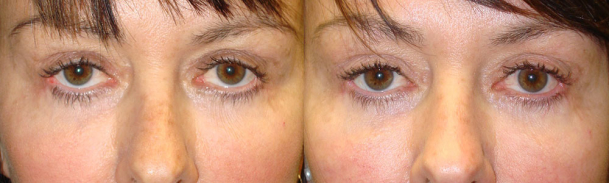 blepharoplasty-eyelid-attractive-treatment