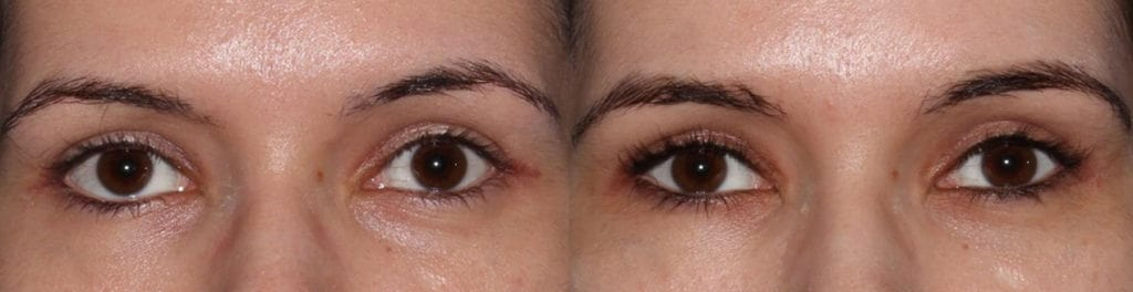Young female, complained inherited lower eyelid retraction with sclera show and eye asymmetry and rounded eyes. She underwent Almond Eye Surgery including lower eyelid retraction surgery (with soof lift, no spacer graft) and canthoplasty to create more attractive almond shaped eyes. Before and 6 months after cosmetic eyelid surgery photos are shown.