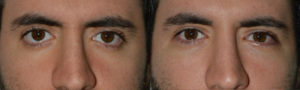 25 year old male, with inherited rounded eyes, lower eyelid retraction (eyelid too low) with sclera show (white showing under colored part of eyes), underwent lower eyelid retraction surgery (with internal Alloderm graft) and canthoplasty, resulting in elevation of the lower eyelids and creating more attractive almond shape eyes. He also had tear trough silicone implants placed. Preop and 4 months postoperative photos are shown.