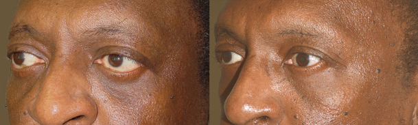 Middle age man, with history of Graves thyroid eye disease, underwent orbital decompression surgery (to correct bulging eyes) followed later by lower eyelid retraction repair (internal approach, without graft) and canthoplasty to give more almond shape eyes.