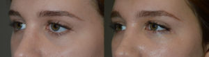 17 year old girl, with inherited sad looking eyes, secondary to lower eyelid retraction (worse on left side) with scleral show and under eye hollowness, wanted to have more attractive almond shape eyes. She underwent lower eyelid retraction correction (internal approach, without graft, conservative midface lift), canthoplasty, and tear trough silicone implants. Preop and 2 months postoperative photos are shown.