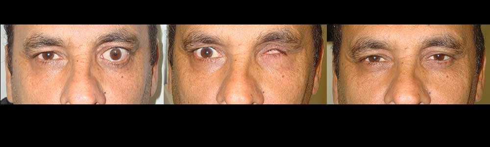 eye-prosthesis-surgery-in-los-angeles
