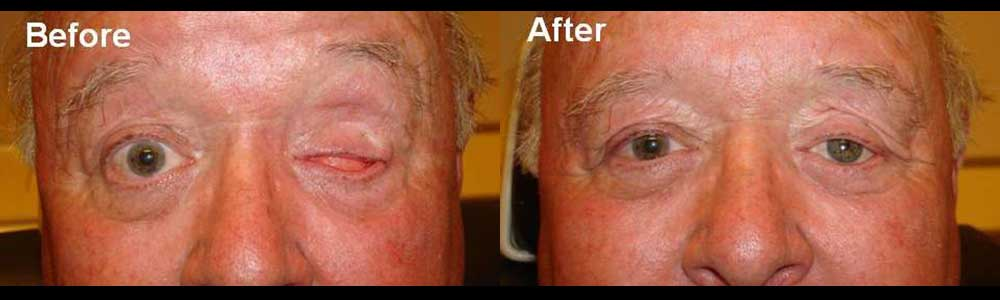 eyeball-removal-operation-in-la