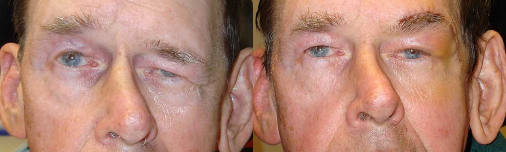 35 year old male, with severe left facial paralysis and paralytic eyebrow ptosis (droopy brow), underwent direct left eyebrow lift. Preop and 2 months postoperative photos are shown.