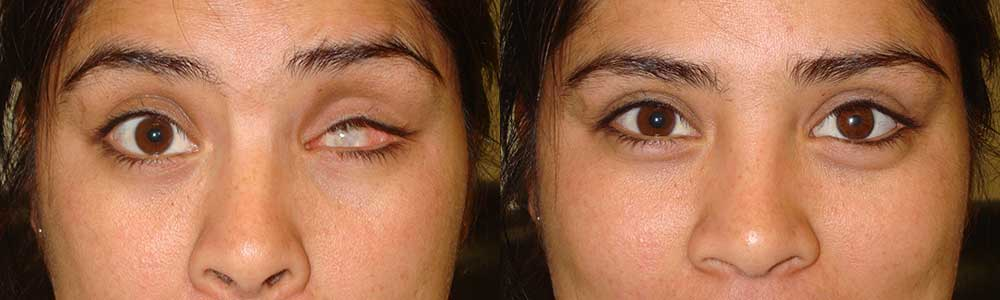 Before (left) and after (right) prosthetic eye (after enucleation/eye removal)