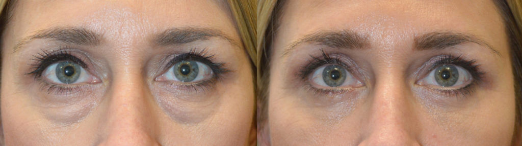 47 year old female, c/o under eye bags and saggy upper lids, looking tired. She underwent transconjunctival lower blepharoplasty with fat bags repositioning and skin pinch plus upper blepharoplasty, under local anesthesia with oral sedation in the office. Before and 6 weeks after cosmetic Quad-blepharoplasty photos are shown.
