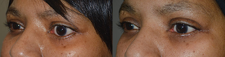 Middle age woman with left facial palsy with left lower eyelid retraction underwent left lower eyelid retraction surgery and canthoplasty, without eyelid spacer graft. Before and 3 months postoperative photos are shown.