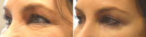 55 year old female, complained of saggy eyelids with loose skin. She underwent cosmetic eyelid surgery including upper blepharoplasty, lower blepharoplasty, and lateral brow lift, under local anesthesia in the office. Before and 2 months postoperative photos are shown, with more youthful, yet natural, results.
