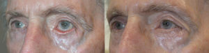 70+ year old male, with left facial/eyelid paralysis from Bells palsy with paralytic left lower eyelid ectropion, underwent left lower eyelid ectropion surgery with skin graft. Before and 3 months postoperative photos are shown.