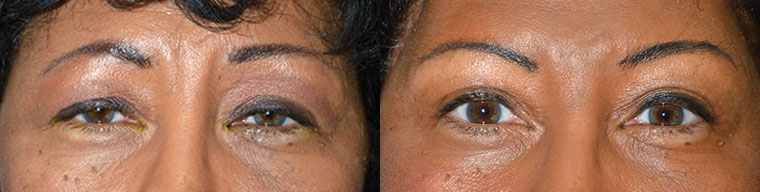 Middle age African-American female, complained of droopy saggy upper eyelids with tired eye appearance. She underwent bilateral upper eyelid ptosis repair (droopy eyelid surgery via muscle tightening), upper blepharoplasty (skin removal), and lateral pretrichial brow lift, to give more youthful natural eye appearance. Before and 3 months after cosmetic eyelid surgery postoperative photos are shown.