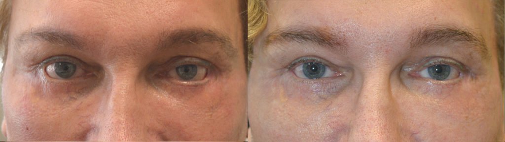 65 year old male, with history of multiple lower eyelid surgeries and canthoplasties with persistent lower eyelid retraction, with trouble closing his eyes, underwent revision lower eyelid retraction repair. Before and 3 months after revision eyelid surgery photos are shown. Patient is very happy with the improvement achieved.