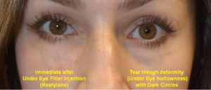 Before and after of a tear through deformity (under eye hollowness) with dark circles