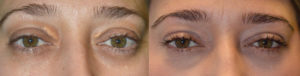 38-year-old female, underwent cosmetic eyelid procedure under local anesthesia to remove upper eyelid xanthelasma (cholestrol deposit under eyelid skin). Before and 1 month after procedure photos are shown.