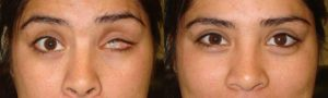 Santa Barbara Ocular Implant Reconstructive Surgery