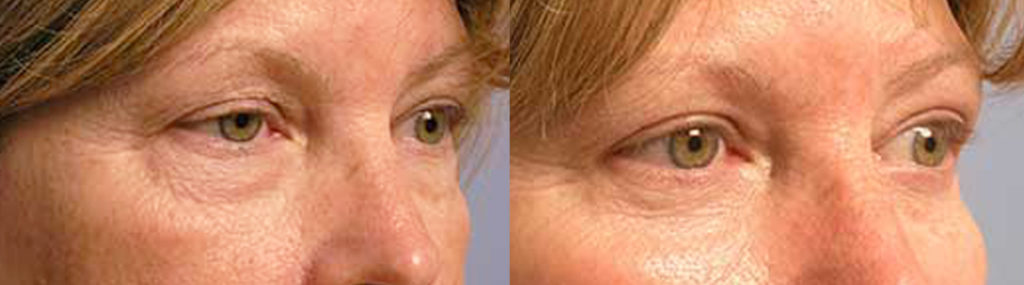Santa Barbara Aesthetic Eye Surgery Procedure