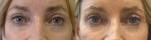 Los Angeles Oculoplastic Surgeon Eye Lift Procedure